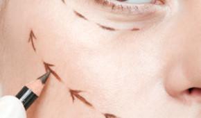 Lifting par fil tenseur - Dr Magnier, médecin esthétique à Charenton