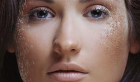 Le peeling pour éliminer les défauts de la peau - Dr Magnier à Charenton
