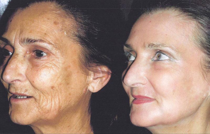 Photos avant/après un peeling - Dr Magnier à Charenton et Paris 12