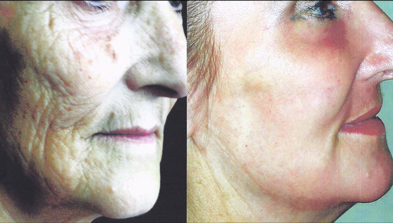 Photos avant/après un peeling 2 - Dr Magnier à Charenton et Paris 12