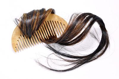 Traitement de la perte des cheveux à Charenton et Paris 12 - Dr Magnier