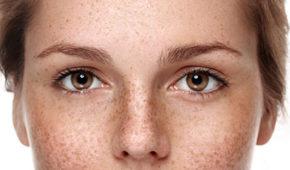 Traitement des troubles pigmentaires par le Dr Magnier à Charenton