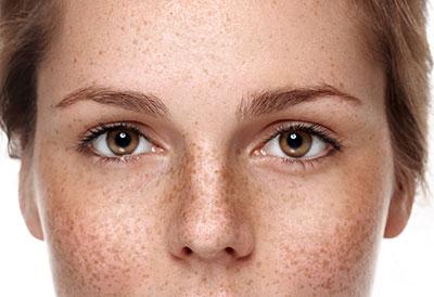 Traitement des troubles pigmentaires - Dr Magnier à Charenton et Paris 12